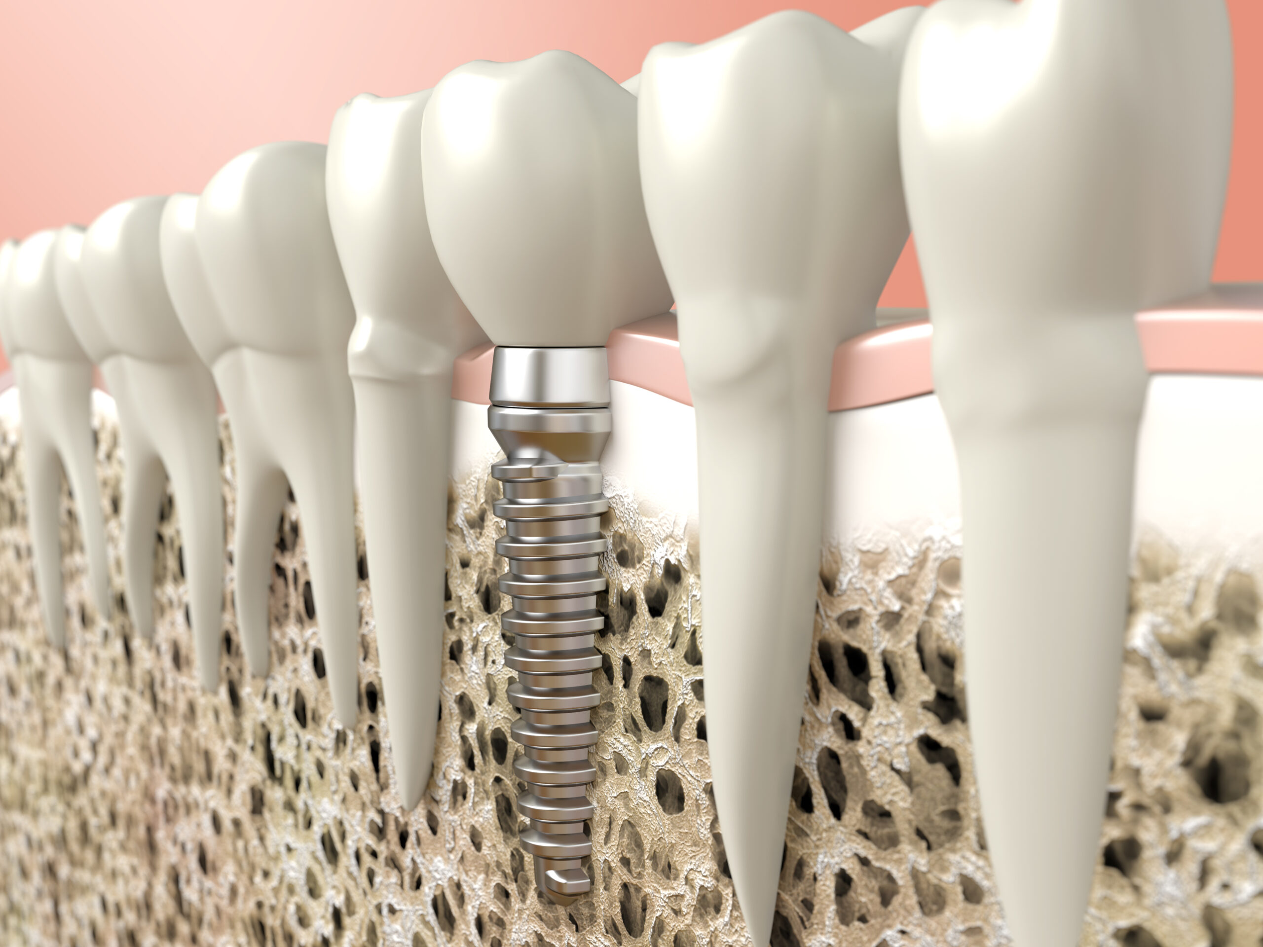 dental implant in shawnessy