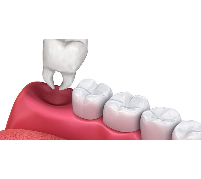 teeth extractions in shawnessy